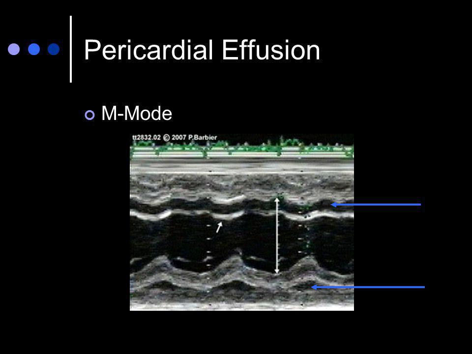 Pericardial Effusion M-Mode