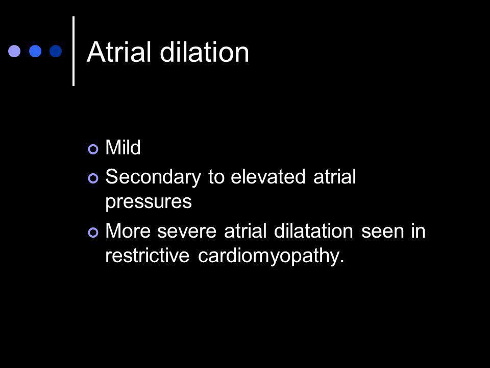 Atrial dilation Mild Secondary to elevated atrial pressures