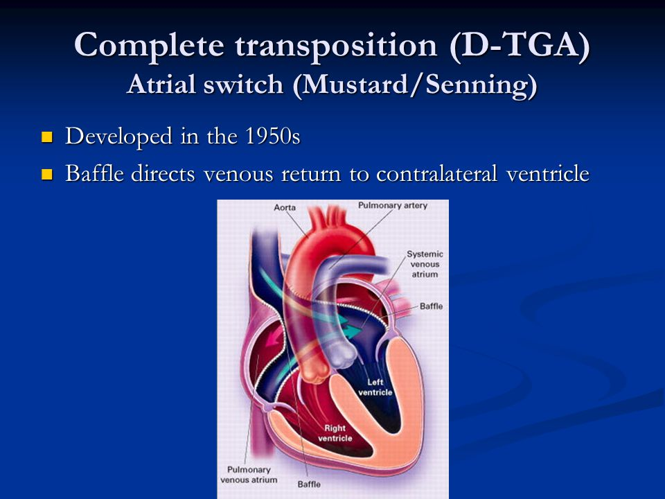 Complete transposition (D-TGA) Atrial switch (Mustard/Senning)