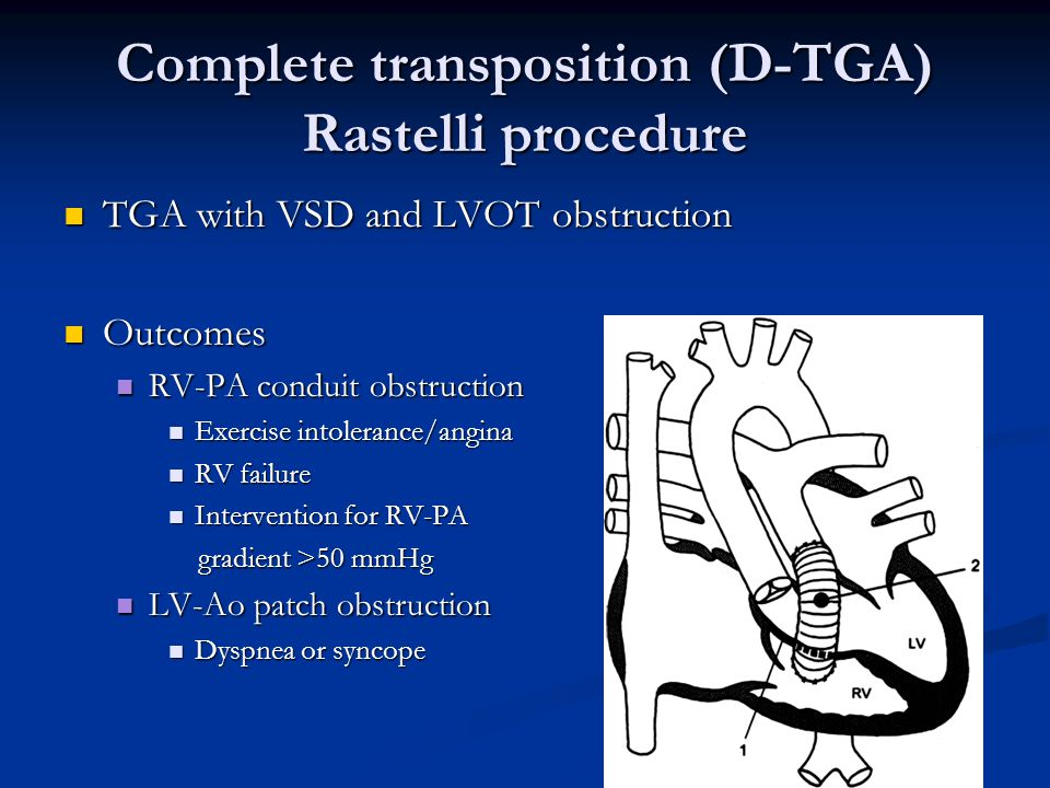 Complete transposition (D-TGA) Rastelli procedure