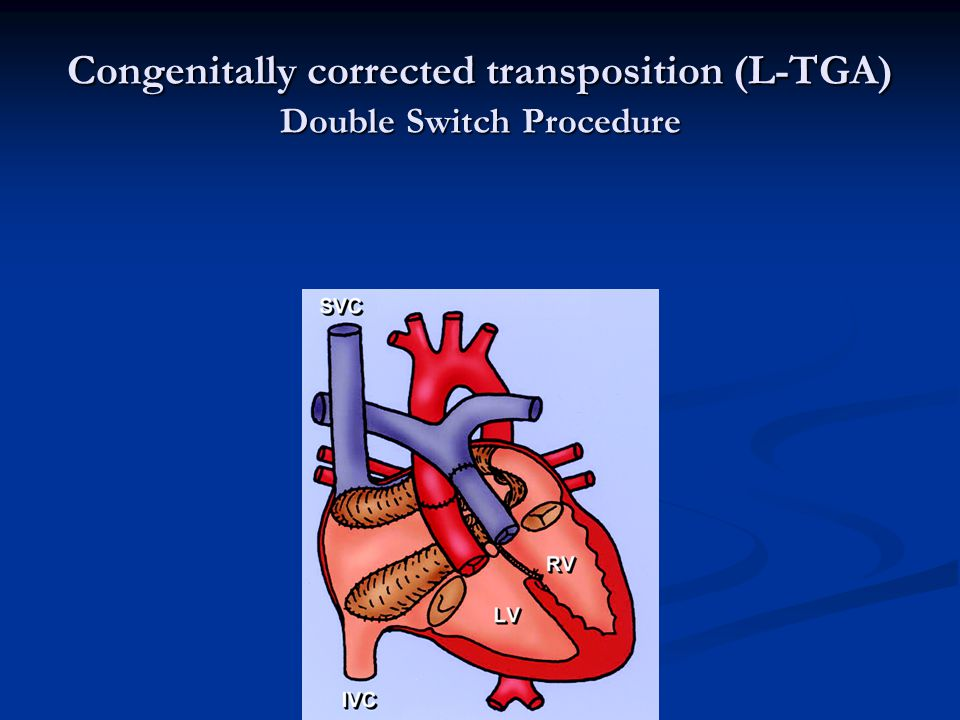 Congenitally corrected transposition (L-TGA) Double Switch Procedure