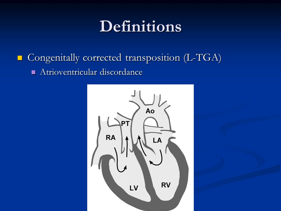 Definitions Congenitally corrected transposition (L-TGA)