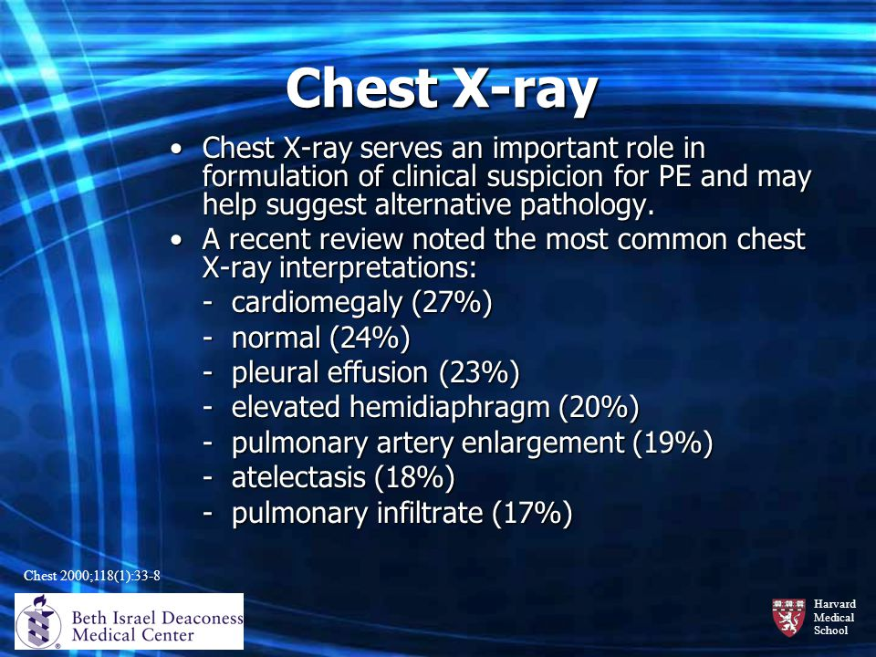 Chest X-ray Chest X-ray serves an important role in formulation of clinical suspicion for PE and may help suggest alternative pathology.