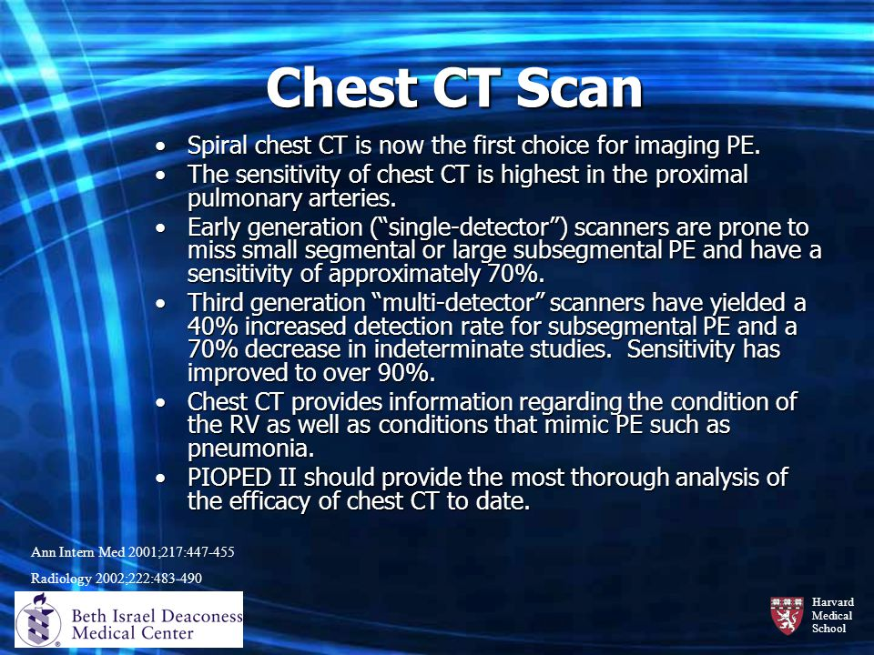 Chest CT Scan Spiral chest CT is now the first choice for imaging PE.