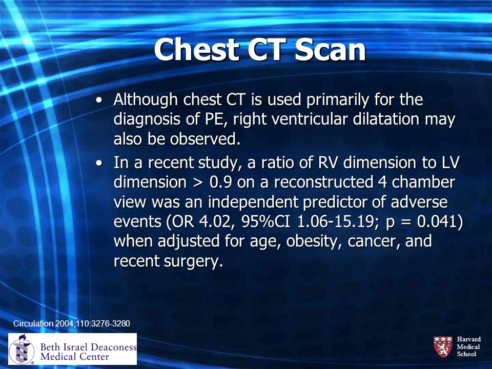 Chest CT Scan Although chest CT is used primarily for the diagnosis of PE, right ventricular dilatation may also be observed.