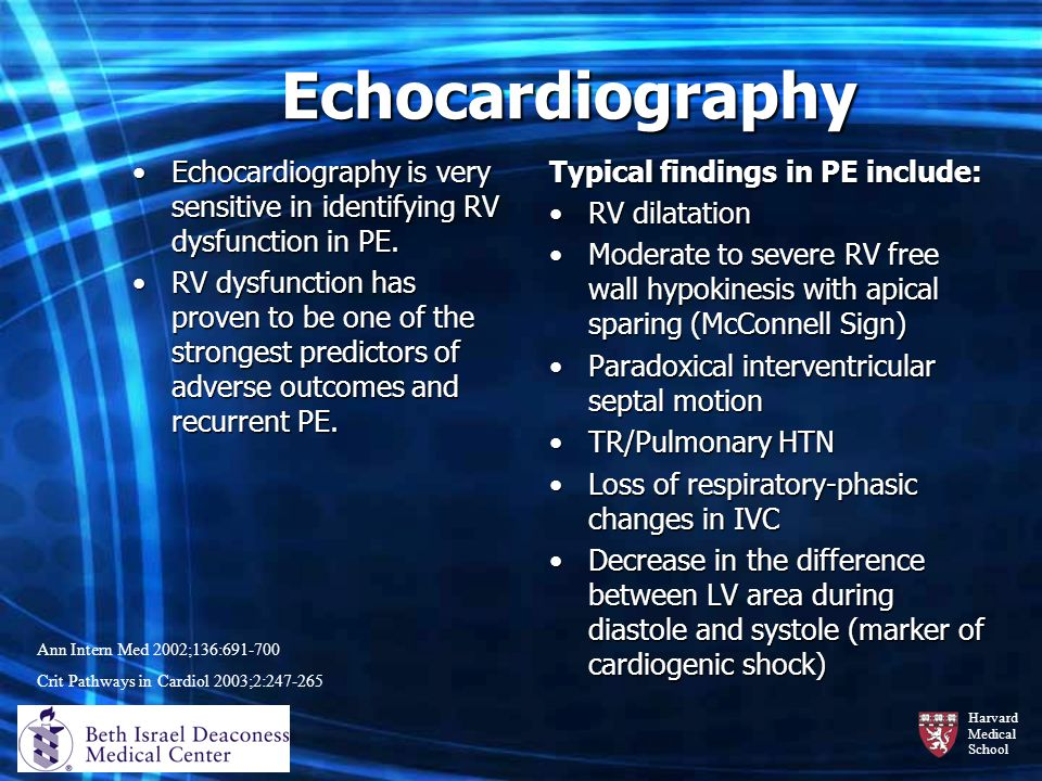 Echocardiography Echocardiography is very sensitive in identifying RV dysfunction in PE.