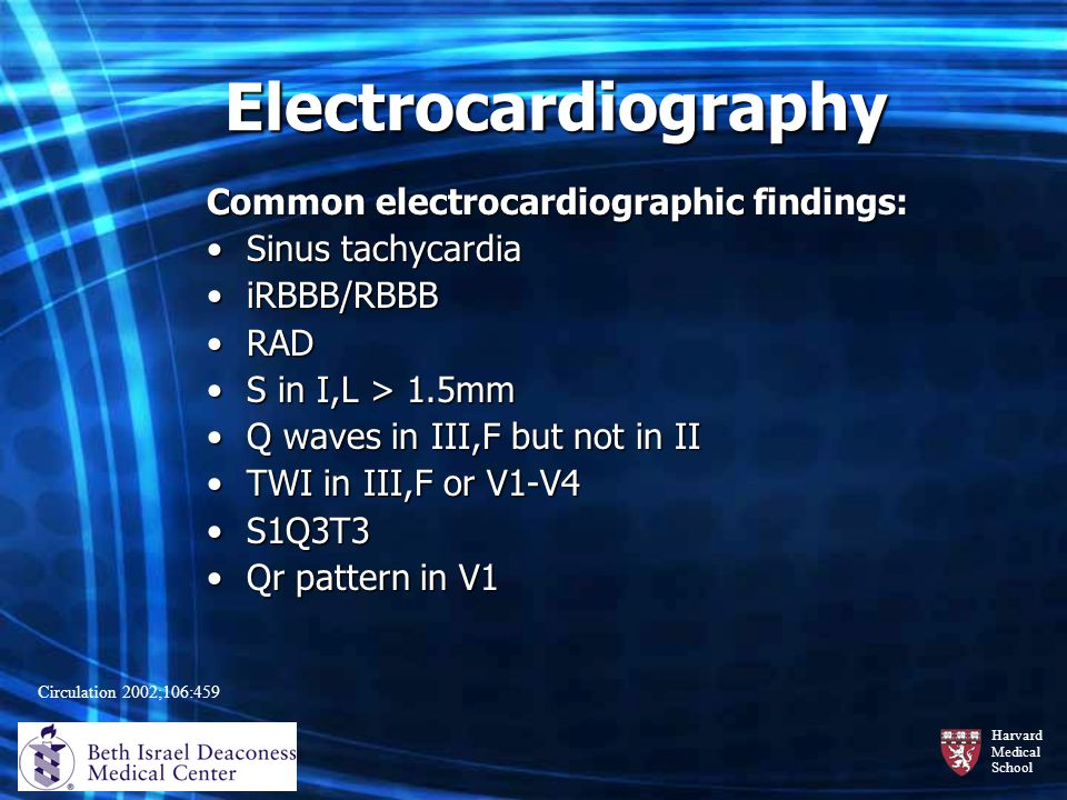 Electrocardiography Common electrocardiographic findings: