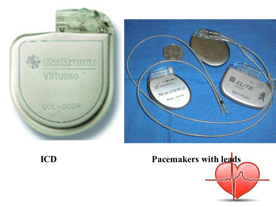 ICD Pacemakers with leads