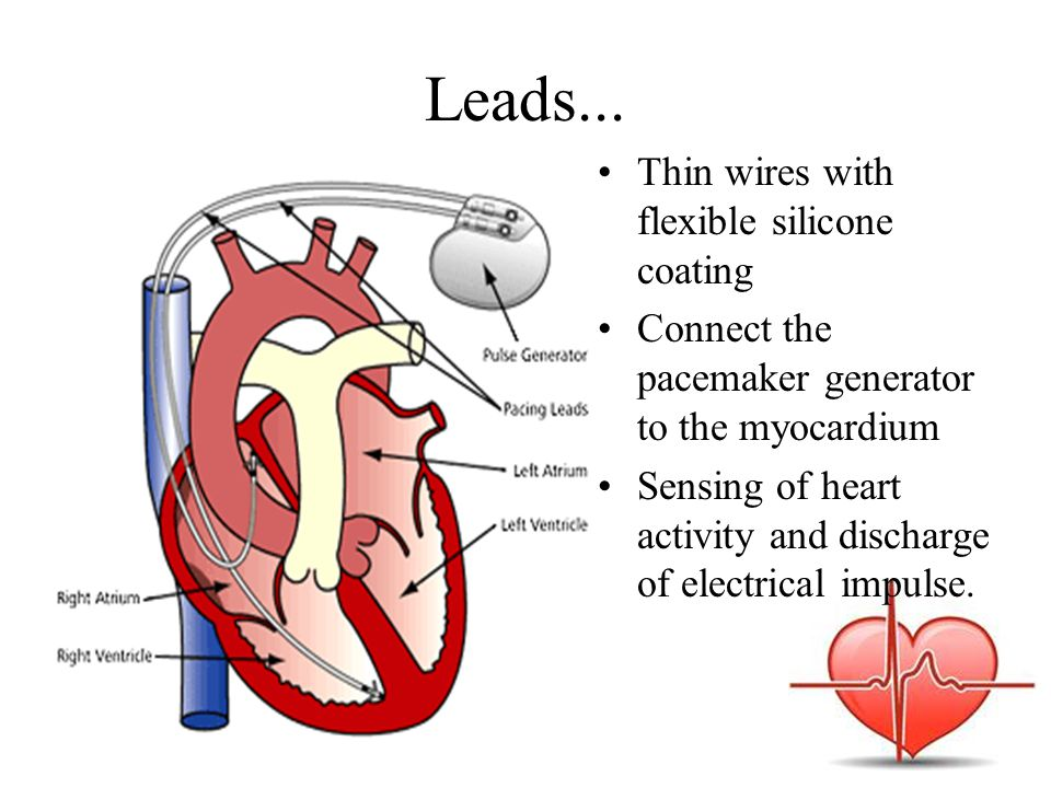 Leads... Thin wires with flexible silicone coating