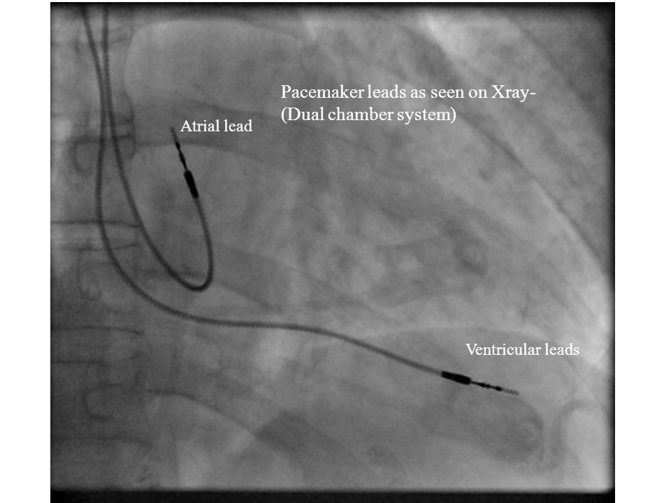 Pacemaker leads as seen on Xray- (Dual chamber system)