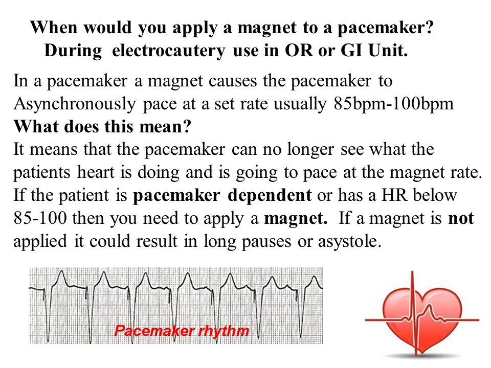 When would you apply a magnet to a pacemaker