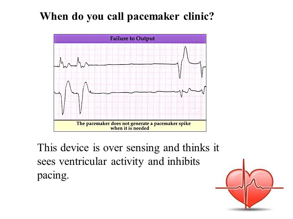When do you call pacemaker clinic