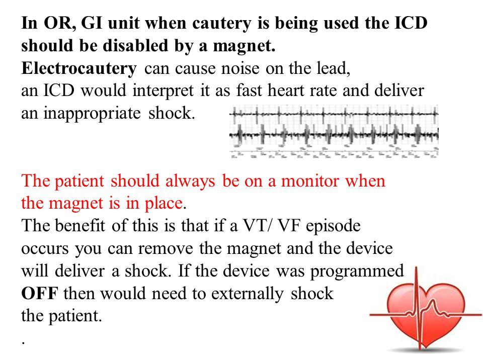 In OR, GI unit when cautery is being used the ICD