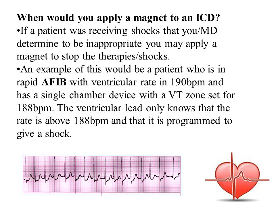 When would you apply a magnet to an ICD