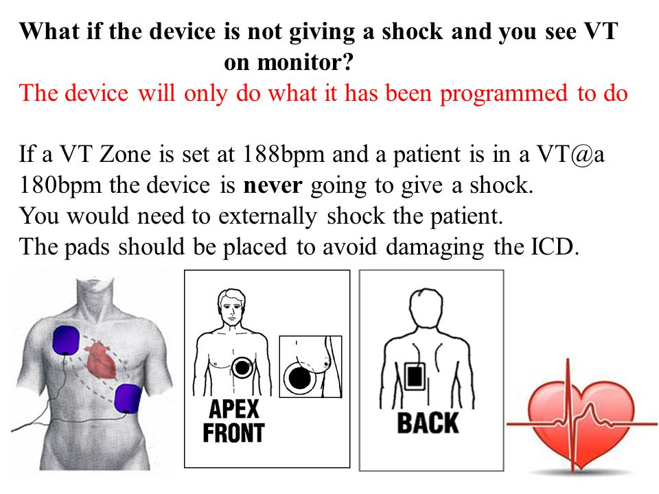 What if the device is not giving a shock and you see VT