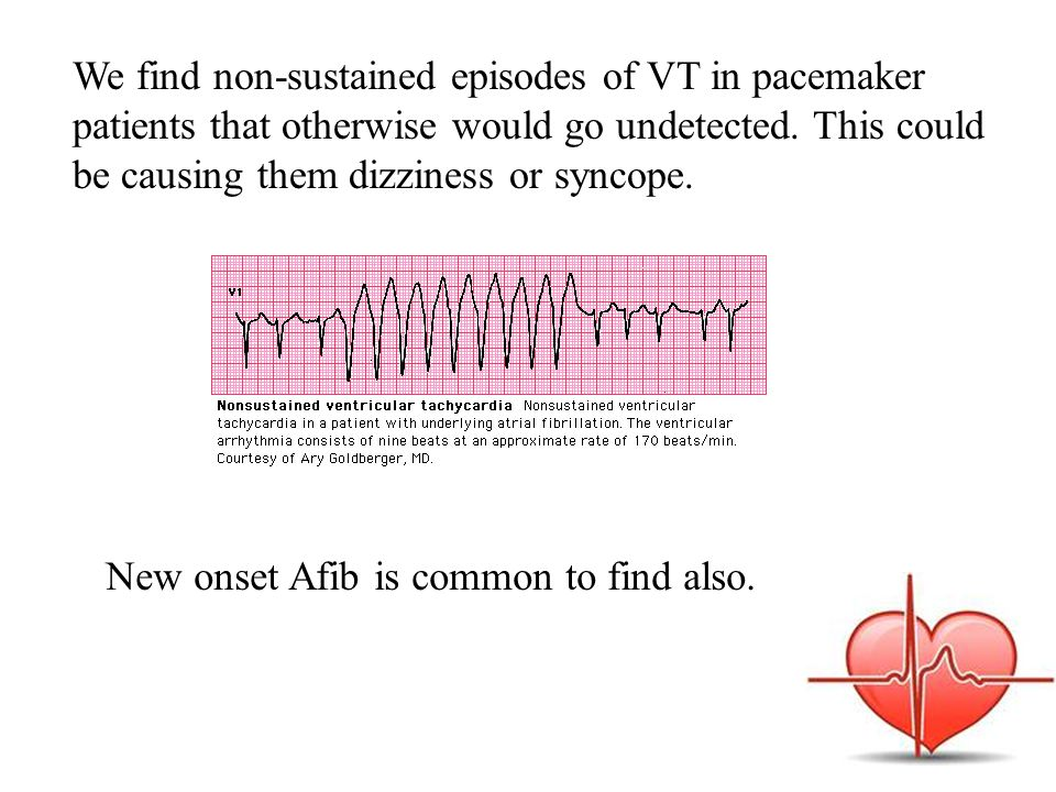 We find non-sustained episodes of VT in pacemaker