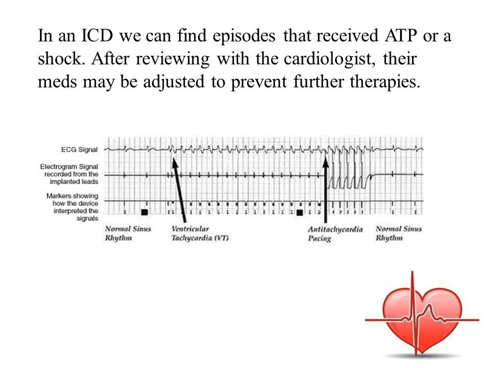 In an ICD we can find episodes that received ATP or a shock