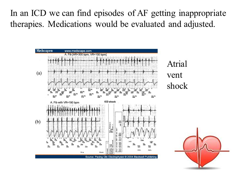 In an ICD we can find episodes of AF getting inappropriate