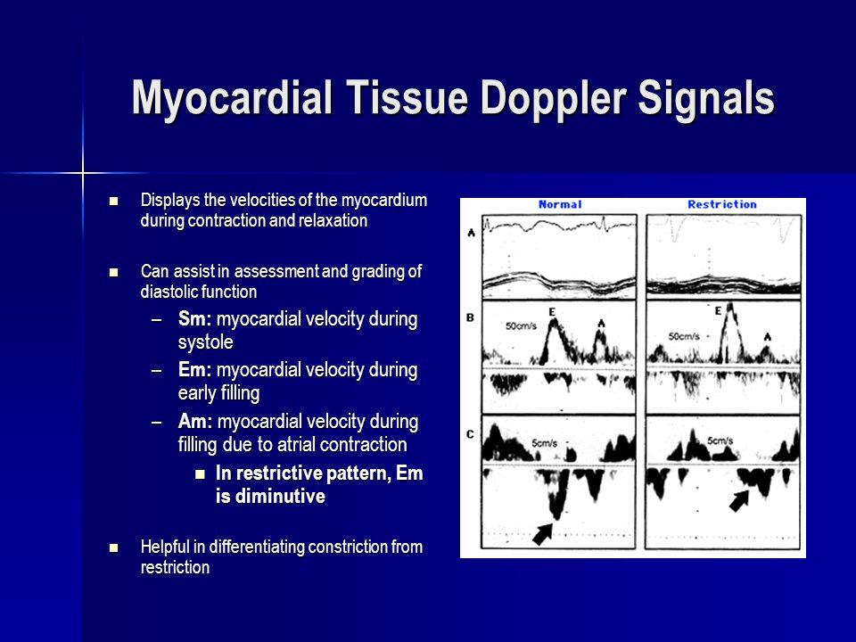 Myocardial Tissue Doppler Signals