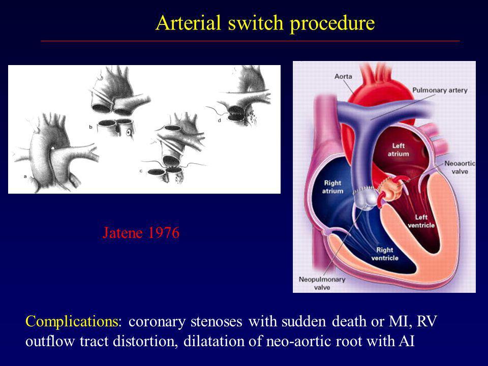 Arterial switch procedure