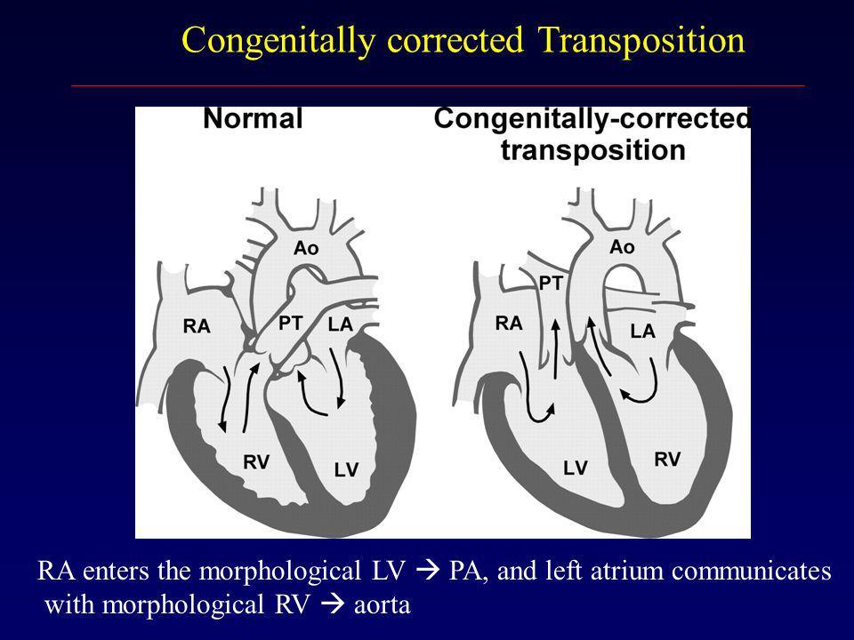 Congenitally corrected Transposition