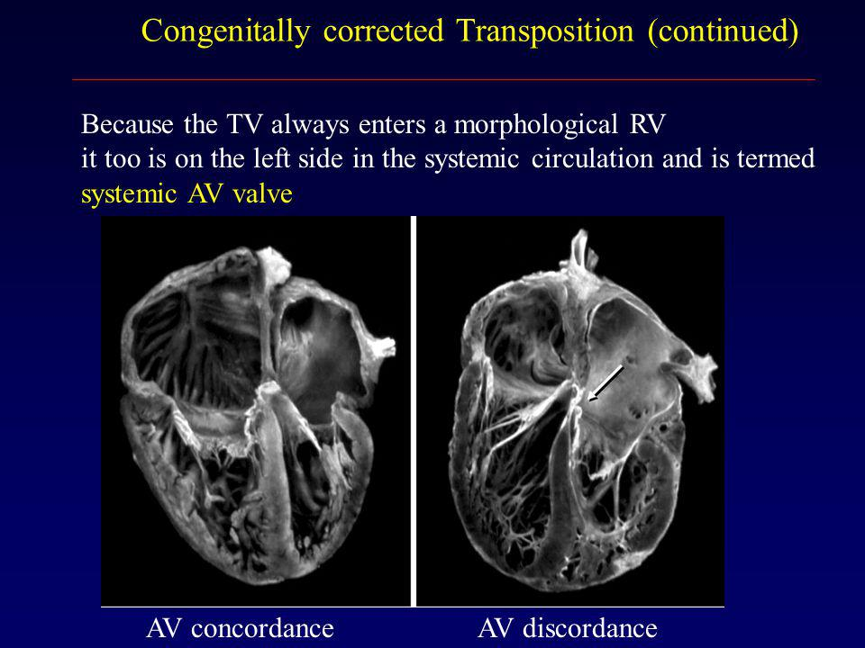 Congenitally corrected Transposition (continued)
