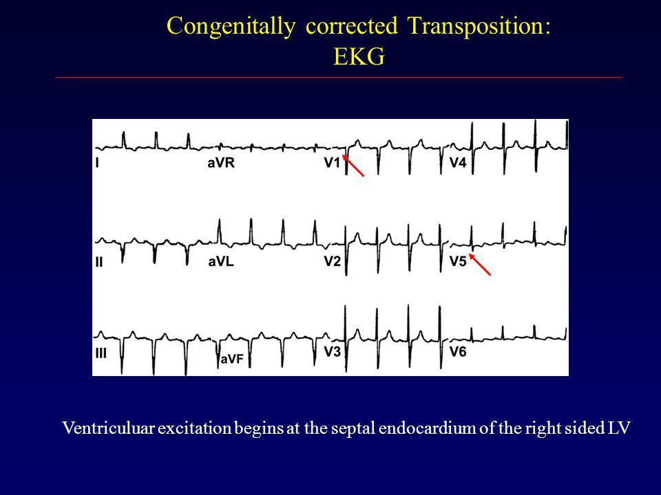 Congenitally corrected Transposition: