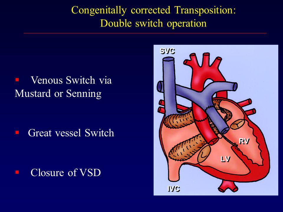 Congenitally corrected Transposition: Double switch operation