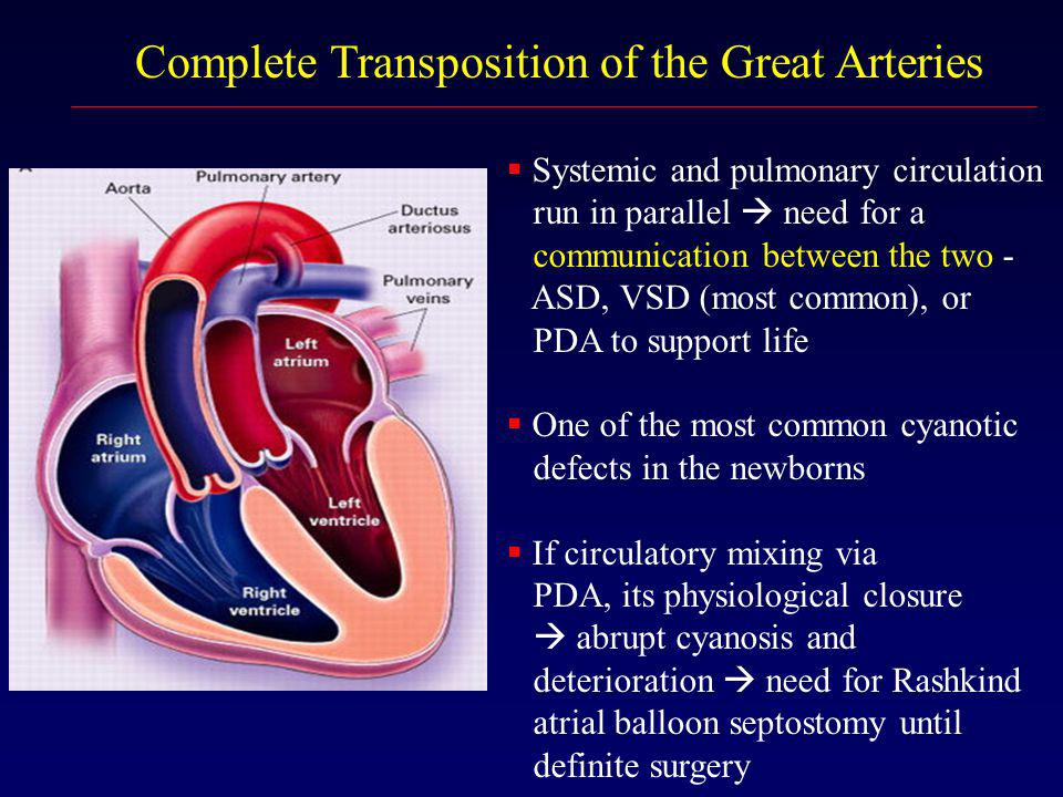 Complete Transposition of the Great Arteries