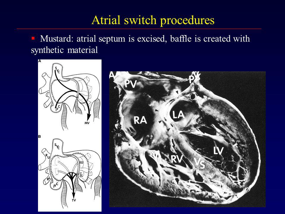 Atrial switch procedures