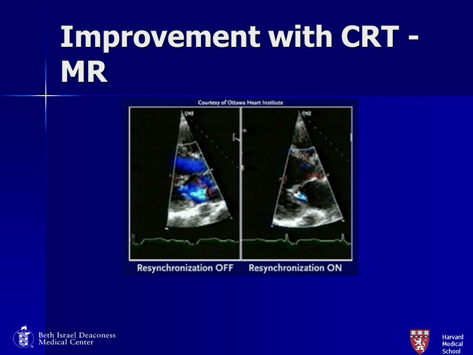Improvement with CRT - MR