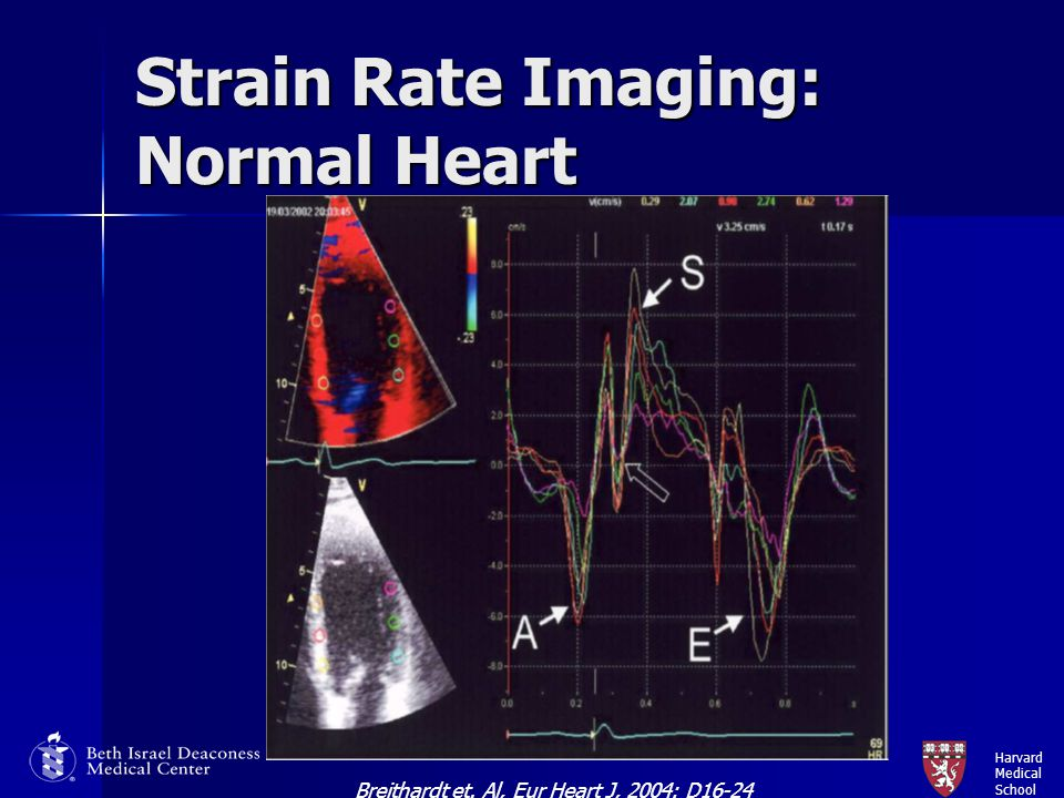 Strain Rate Imaging: Normal Heart