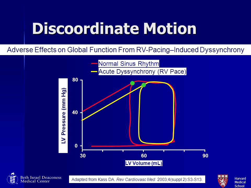 Discoordinate Motion Adverse Effects on Global Function From RV-Pacing–Induced Dyssynchrony. Normal Sinus Rhythm.