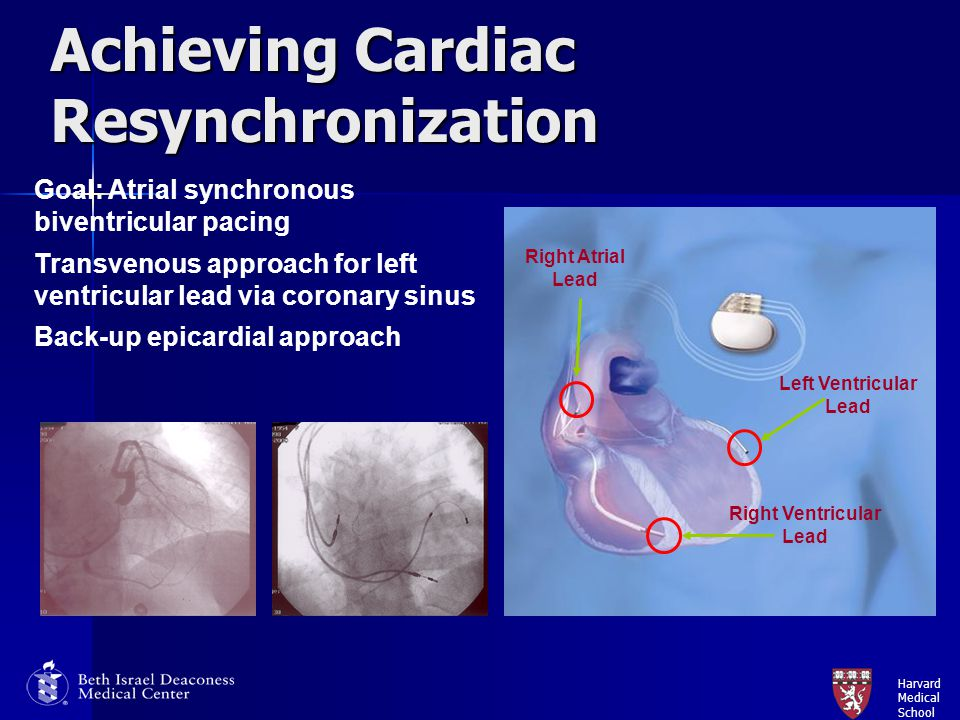 Achieving Cardiac Resynchronization