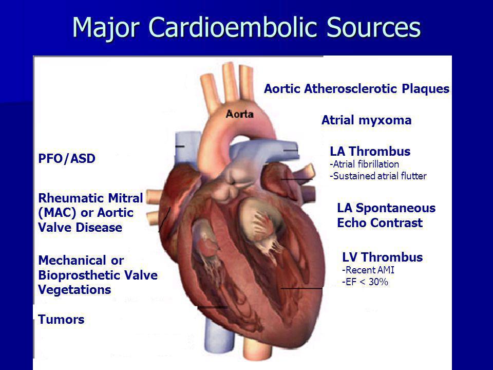 Major Cardioembolic Sources