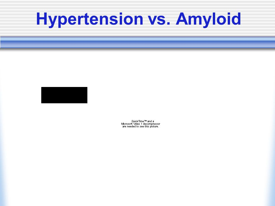 Hypertension vs. Amyloid