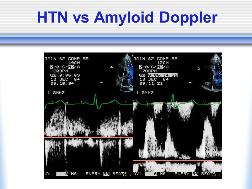 HTN vs Amyloid Doppler