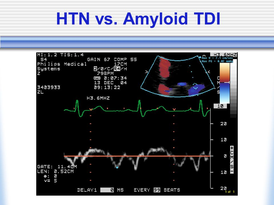HTN vs. Amyloid TDI