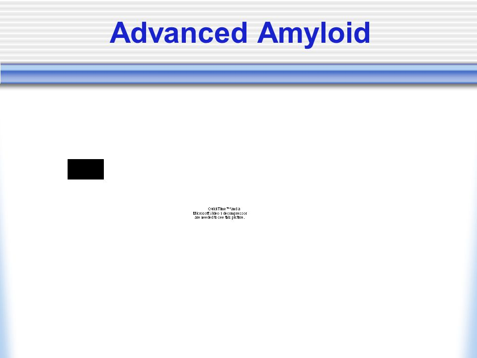 Advanced Amyloid