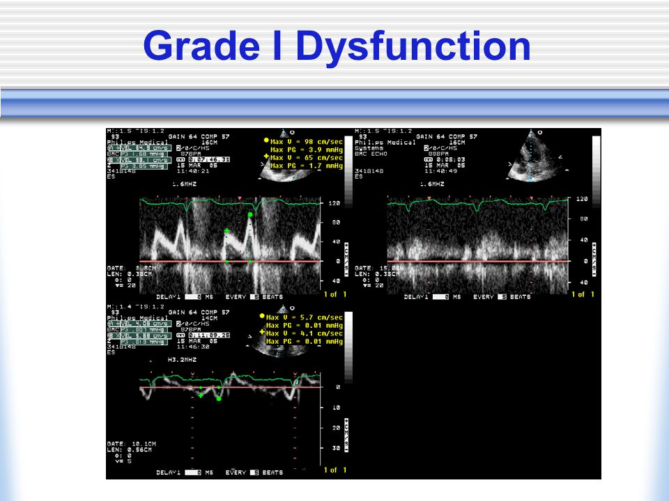 Grade I Dysfunction