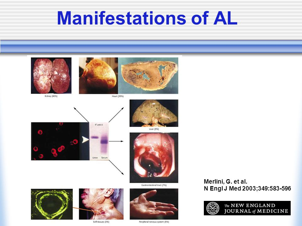 Manifestations of AL