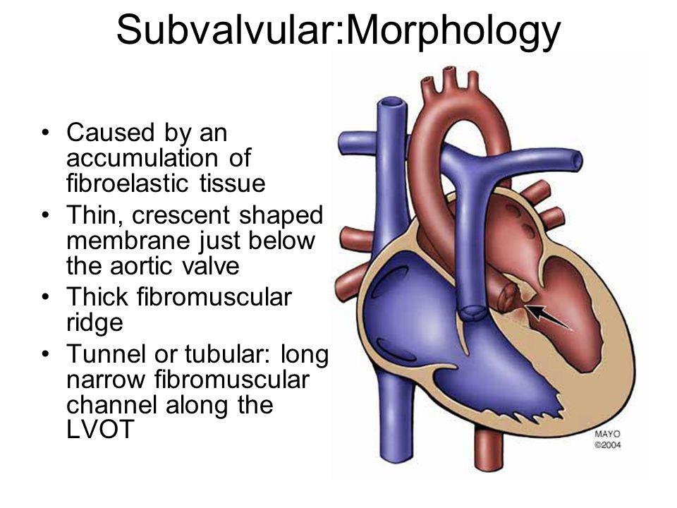 Subvalvular:Morphology