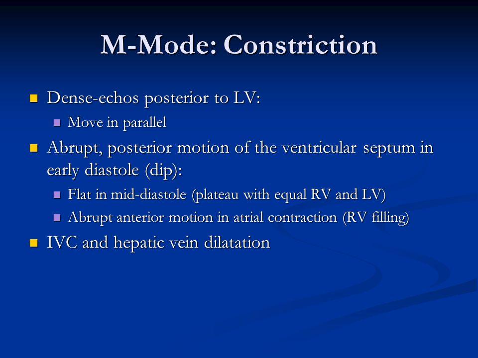 M-Mode: Constriction Dense-echos posterior to LV:
