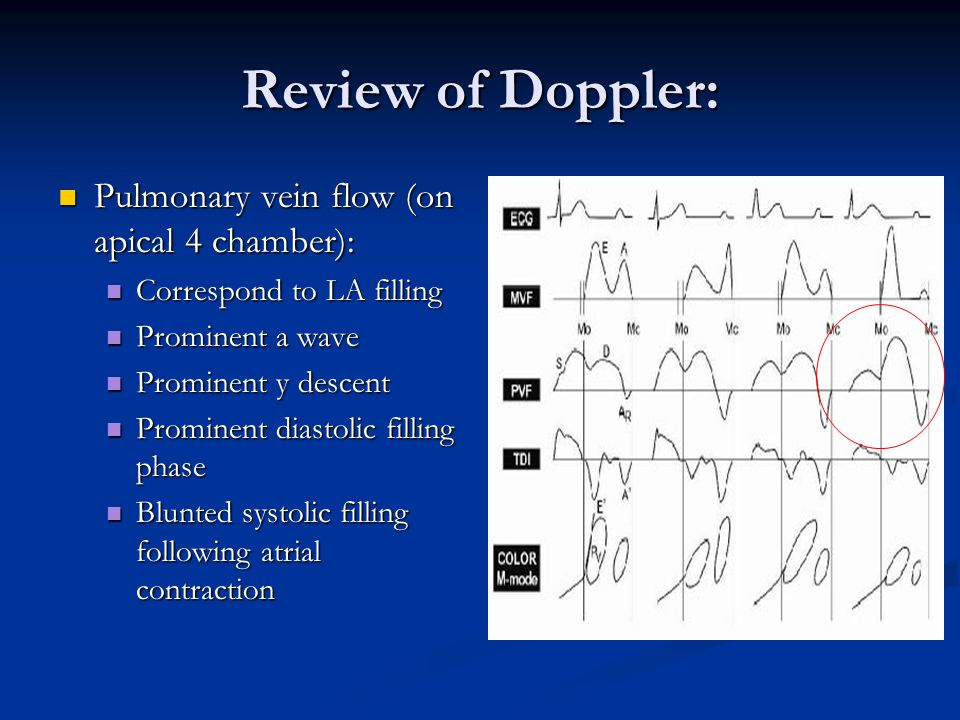 Review of Doppler: Pulmonary vein flow (on apical 4 chamber):