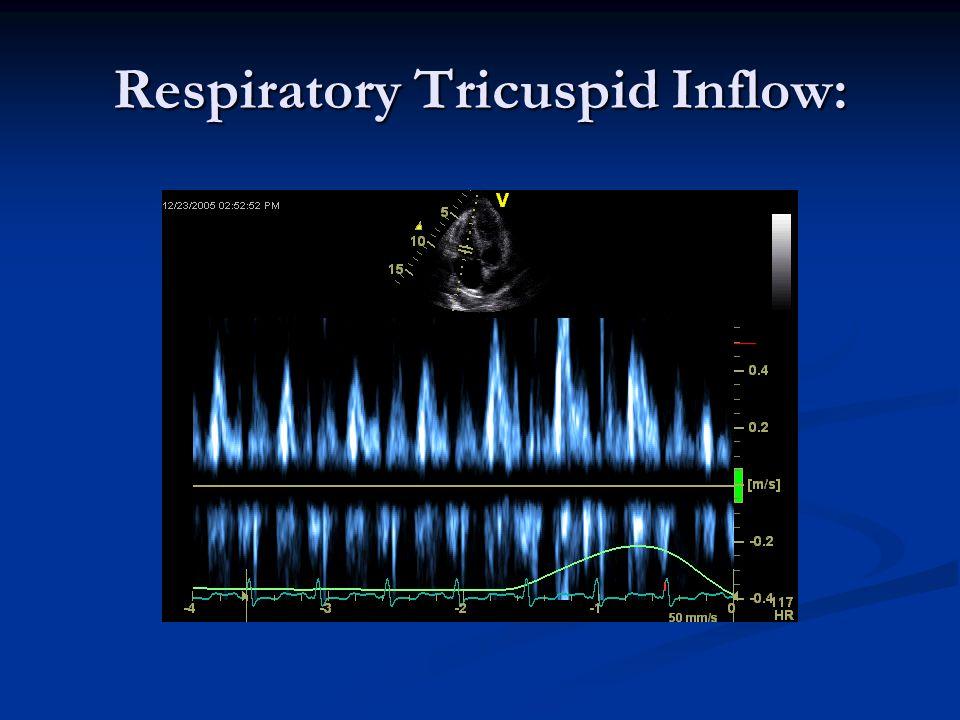 Respiratory Tricuspid Inflow: