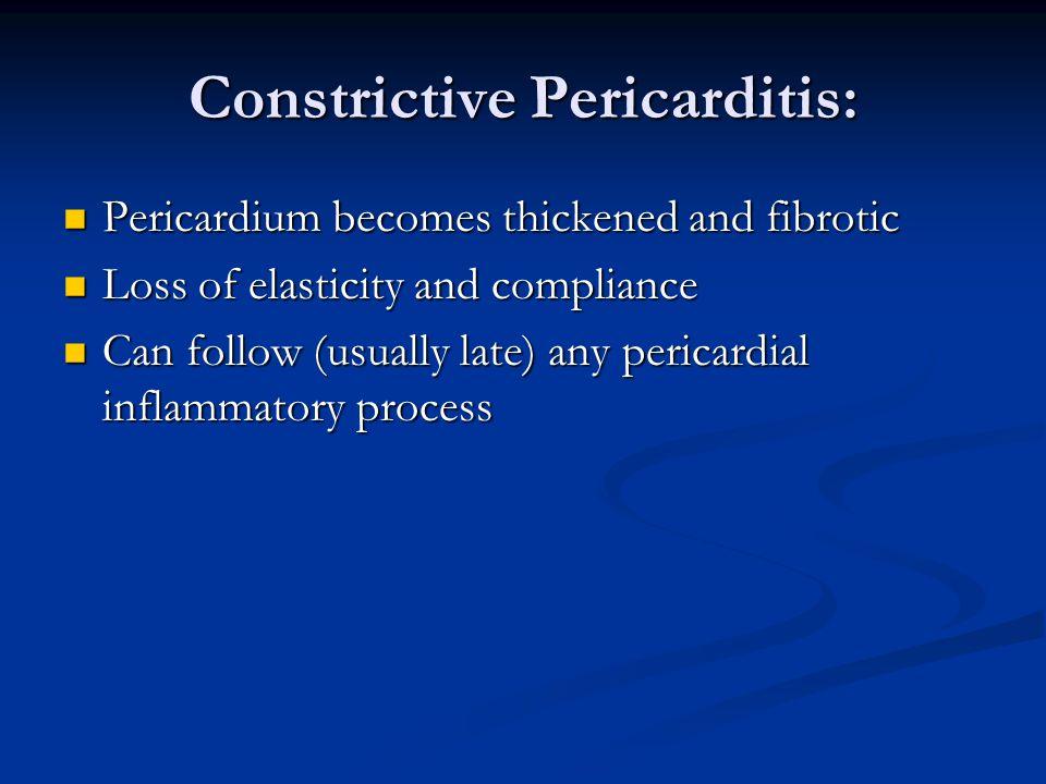 Constrictive Pericarditis: