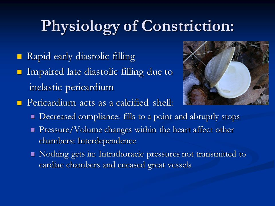 Physiology of Constriction: