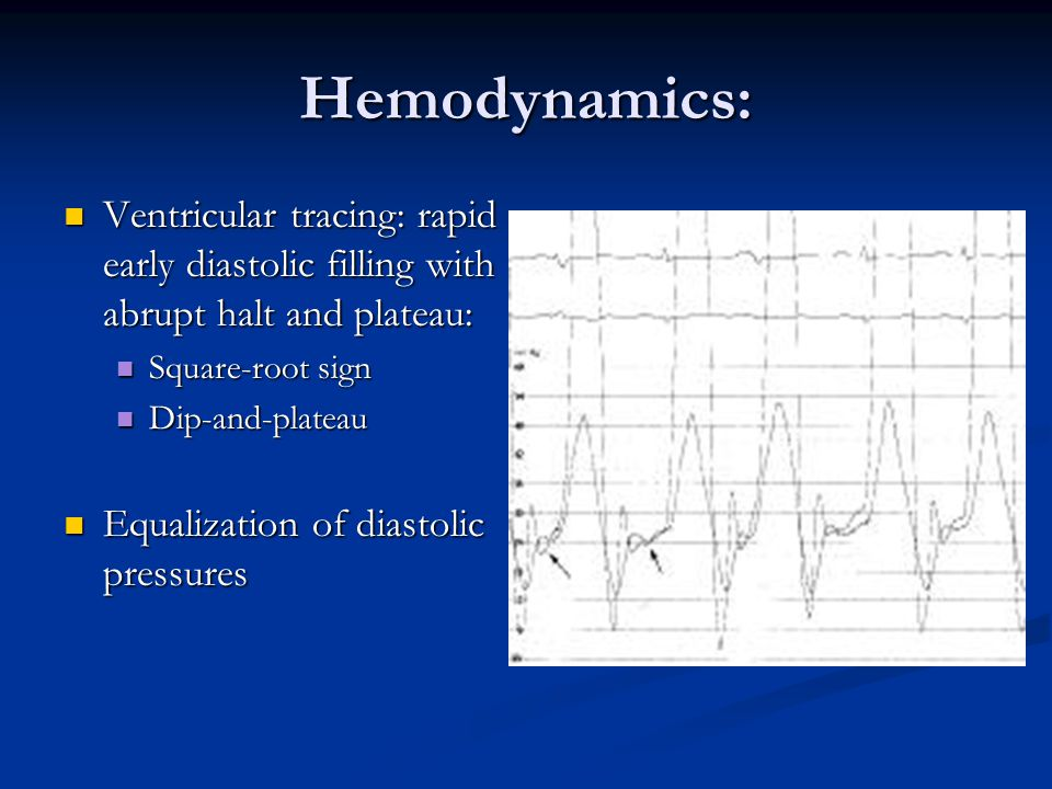Hemodynamics: Ventricular tracing: rapid early diastolic filling with abrupt halt and plateau: Square-root sign.