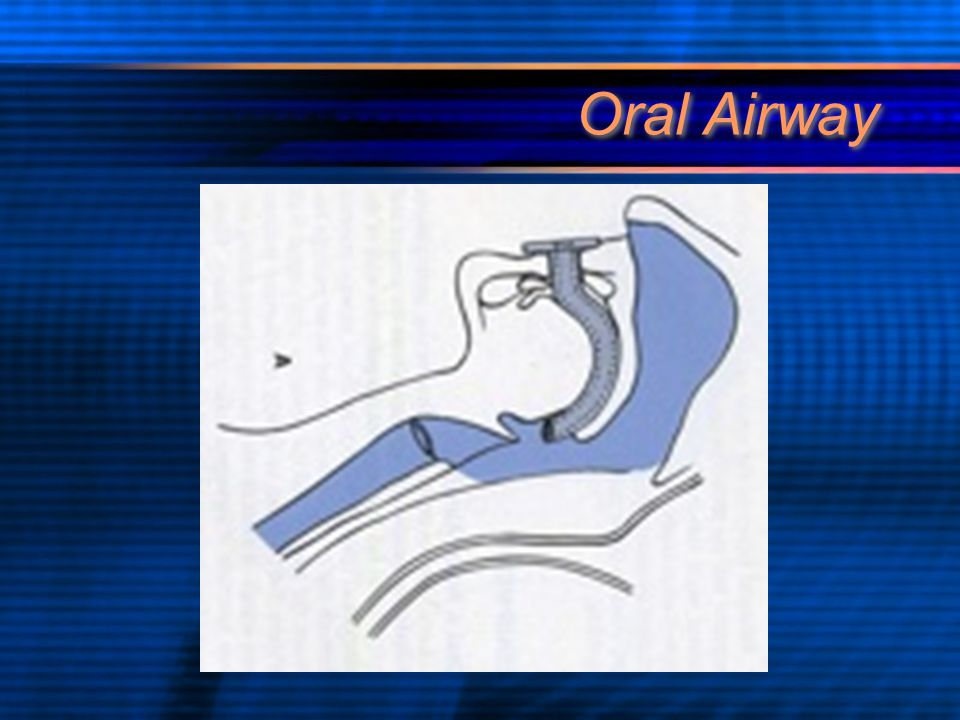 Oral Airway