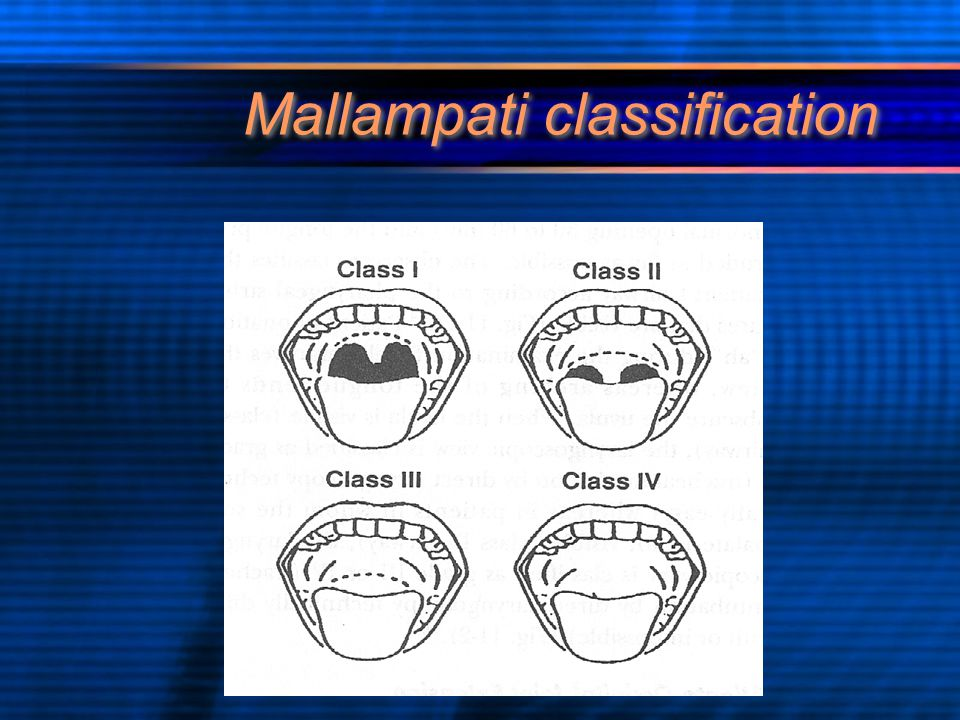 Mallampati classification